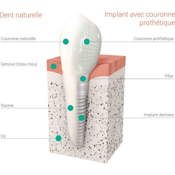 Implant avec couronne prothétique