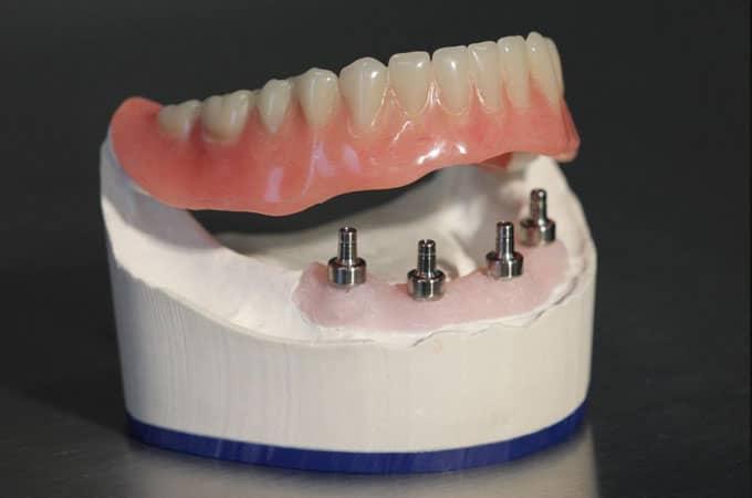 Prothèse amovible sur barre intégrée