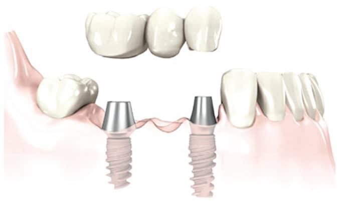 Pont fixe sur implant
