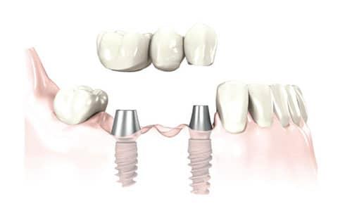 Traitement pont fixe sur implant