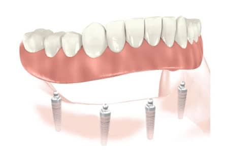 Traitement prothèse complète sur implants
