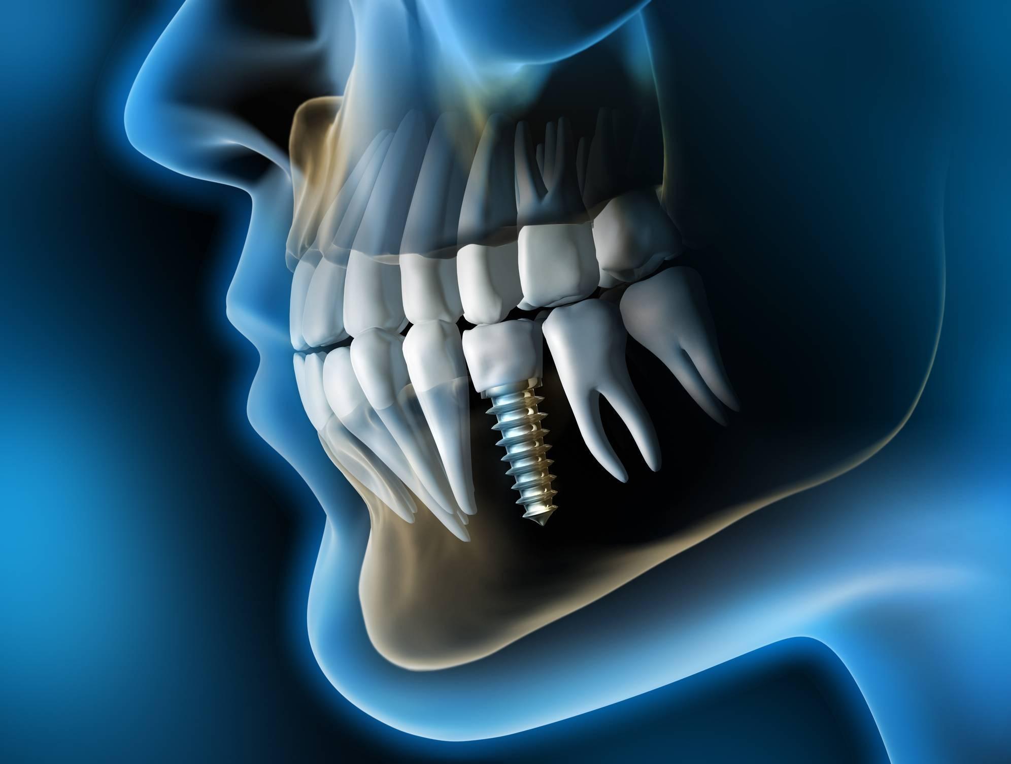invention de l'implant dentaire